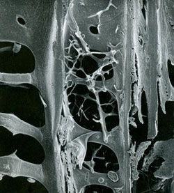 Scanning electron micrograph of a radial section of pine wood with Phlebiopsis gigantea filaments visible during attack. Photo: Robert Blanchette and Benjamin Held, University of Minnesota.