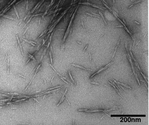 This transmission electron microscope image shows cellulose nanocrystals, tiny structures derived from renewable sources that might be used to create a new class of biomaterials with many potential applications. The structures have been shown to increase the strength of concrete. (Purdue Life Sciences Microscopy Center)